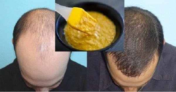 regenerarea părului tratament calvitie