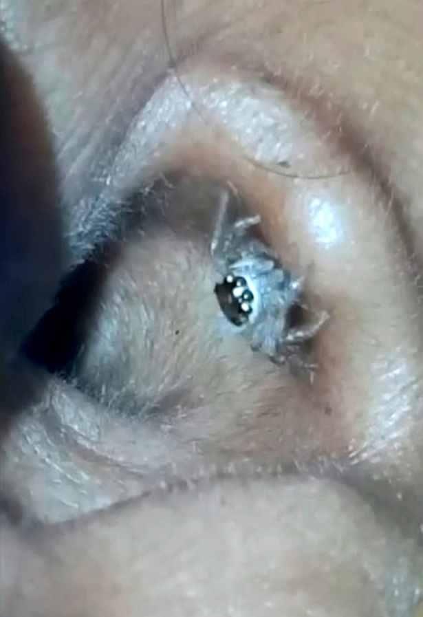 paianjen in ureche 2