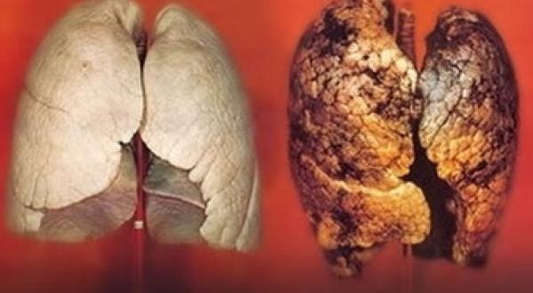 cancer de plamani